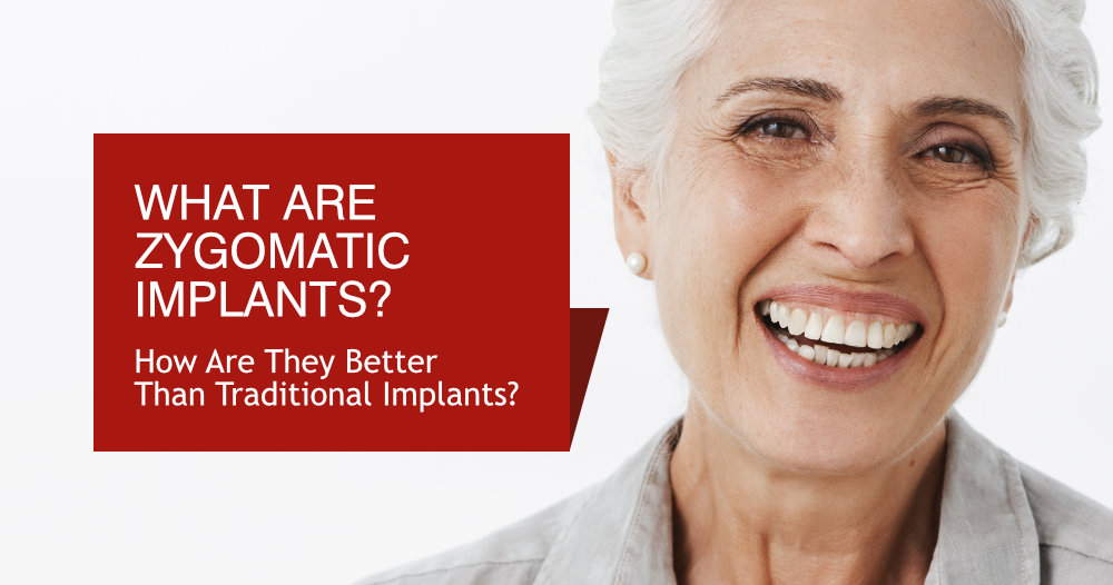 What Are Zygomatic Implants? How Are They Better Than Traditional Implants?